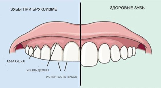 скрежет зубов причины
