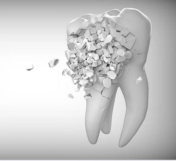 зуб темнеет после удаления нервов